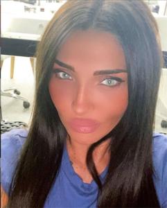 Αγγελική Ηλιάδη: Σοκ με το νέο πρόσωπο της  - Βομβαρδισμός αρνητικών σχολίων στα social media